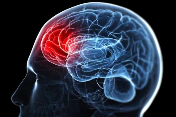 Αγγειακό Εγκεφαλικό Επεισόδιο. Οι επιπτώσεις στην κατανόηση της γλώσσας και της έκφρασης