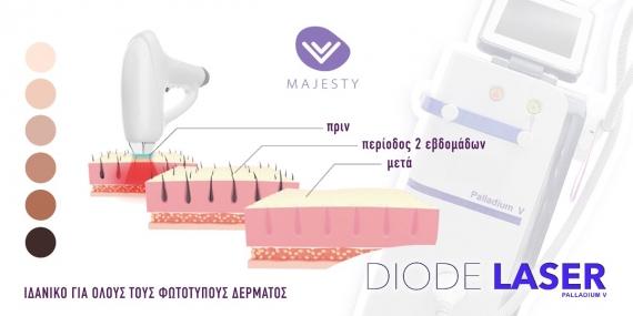 Palladium v-Diode laser: Το κορυφαίο laser στο κέντρο αισθητικής Majesty